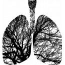 У мужчин была заразная форма туберкулёза