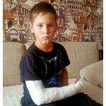 9-летний Даниил Шабатько получил сложный перелом, играя на детской площадке в Бердске