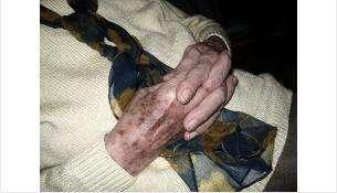 Бабушке дважды за сутки потребовалась помощь спасателей