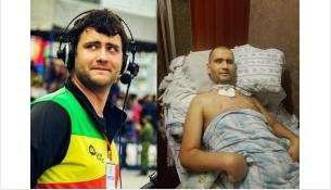 Антон Ермоленко до и после оказания медпомощи. Лечение зуба обернулось для него клинической смертью