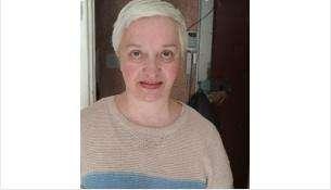 Пропала 64-летняя Радченко (Борисова, Корецкая) Галина Леонидовна