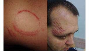 Вячеслав Попов утверждает, что это - следы от побоев