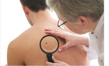 Ведущие онкологи региона проконсультируют бердчан о профилактике меланомы