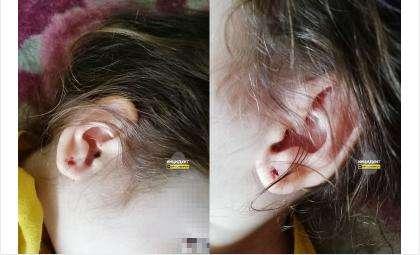 После нападения у детей остались разрывы мочек
