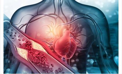 Ранняя диагностика «постковидных» осложнений является необходимой для большинства людей, перенесших COVID-19