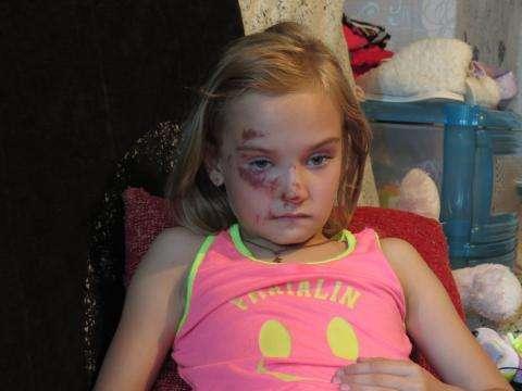 Первоклассница Ульяна получила травмы на детской площадке в Бердске