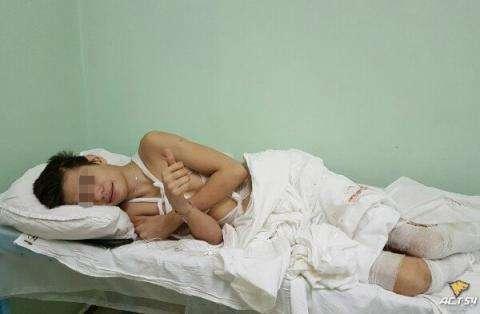 Гражданин Новосибирска бросил сына-подростка в клинике ссильными ожогами— подключились следователи